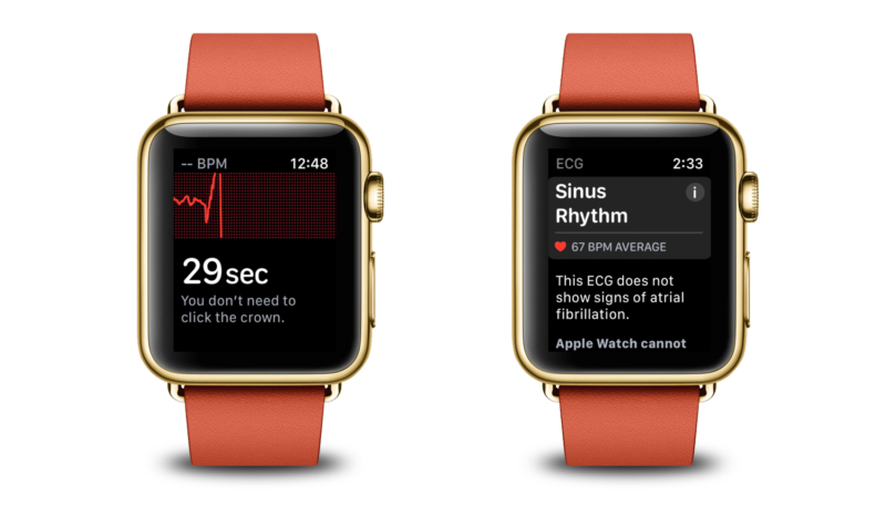 Apple Watch Series 4's New ECG Feature Detects User's A-Fib – Doc Says 'This Probably Saved You'