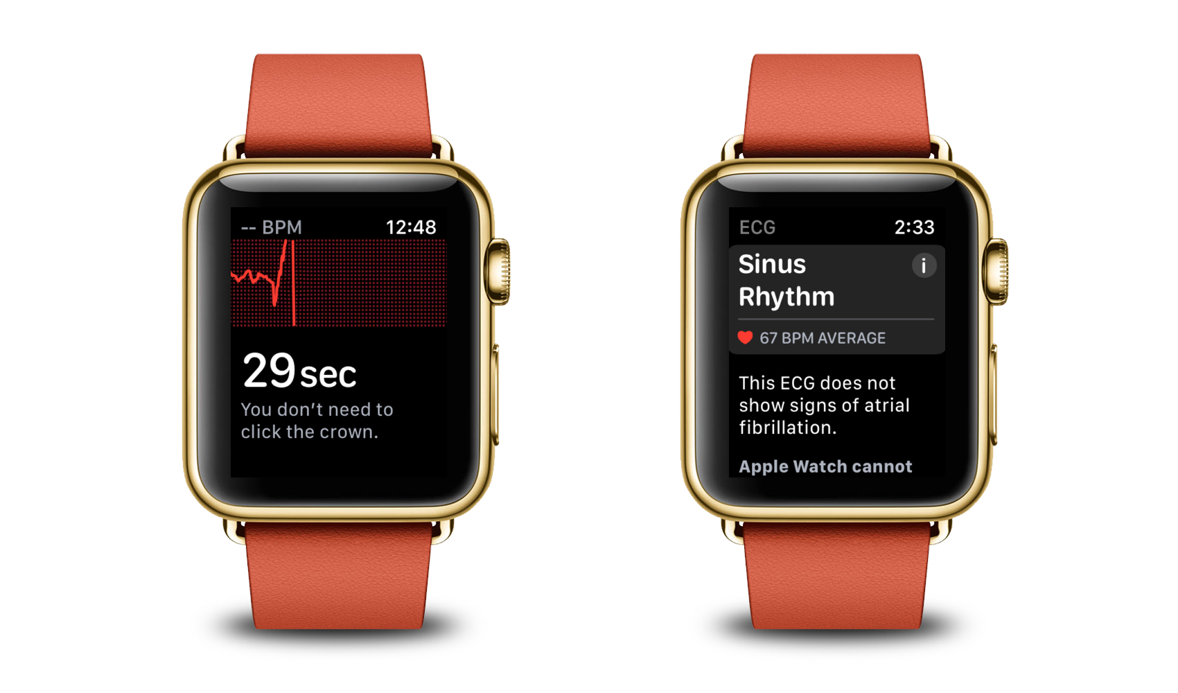 Just One Week After UK Launch, Apple Watch Series 4 ECG Functionality Saves a Life