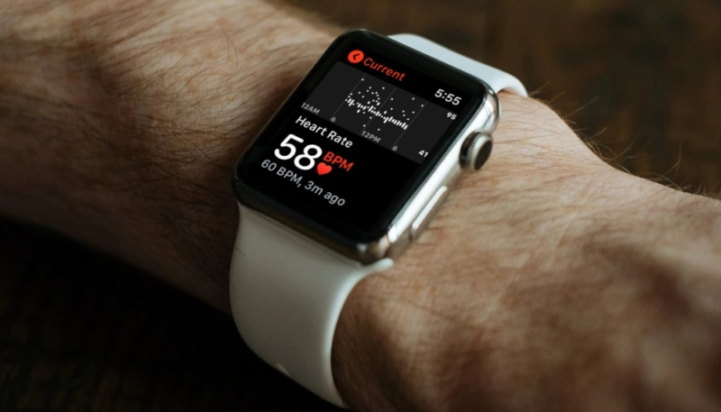 Apple Watch Low Heart Rate Reading Leads to Possibly Life-Saving Heart Procedure for 48-Year-Old Dad